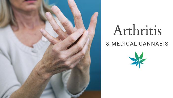 Medical Cannabis for Arthritis: Why it's worth exploring